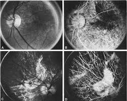 Noble Carr And Siegel Case 10 CHOROIDEREMIA CARRIER A Disc Macula Of Left Eye Showing Pigment Mottling B Fluorescein Angiography Shows