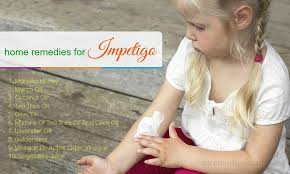 20 Home Reme s for Impetigo Infection in Children and Adults