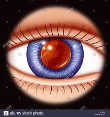 Christmas Tree Cataract Seen In by After Cataract Stock Photos U0026 After Cataract Stock Images Alamy