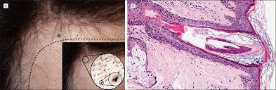 Minoxidil Shedding Phase Pictures by Minoxidil Induced Trichostasis Spinulosa Of Terminal Hair