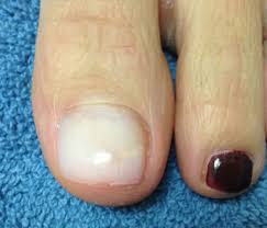 Cosmetic Nail Repair Solana Beach CA Podiatrist