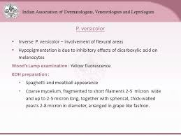 Woods Lamp Examination Images by Digital Lecture Series Chapter Ppt Download