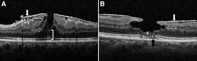 Lamellar Macular Hole A Clinicopathologic Correlation Of Surgically