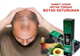 Tissa Advance Hair Tonic With HABBATUS SAUDA MERAWAT RAMBUT GUGUR