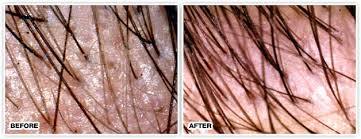 propecia after 2 years synthroid hair loss does stop