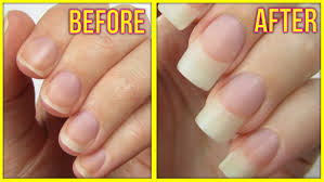 5 Ways To Grow Your Nails FAST! - YouTube Best 25 Nail Polish Tricks Ideas On Pinterest Manicure Tips At Home Acrylic Nails Cpgdsnsortiumcom Get To Do Your Own Cool Easy Designs For At 2017 Nail Designs Without Art Tools 5 Youtube Videos Of Art Home How To Make Fake Out Tape 7 Steps With Pictures Ea Image Photo Album Diy Googly Glowinthedark Halloween Tutorials