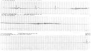 Sick Sinus Syndrome Life in the Fast Lane ECG Library