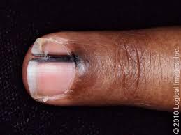 Nail Bed Melanoma by Subungual Melanoma Finger Uptodate
