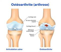 douleur au genou quoi faire pour soulager la douleur et éviter le