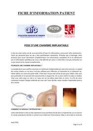 chambre implantable d馭inition cathéter à chambre implantable