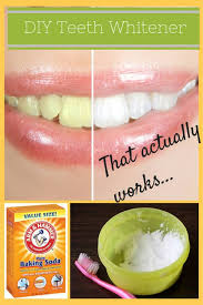 Easy At Home Teeth Whitening for Any Bud