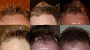 my hairloss story 6 years of pictures 1 year of action