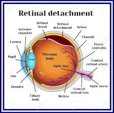 Retinal Detachment Of The Retina From Choroid Stock Vector