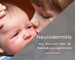 neurodermitis die besten cremes pflege und