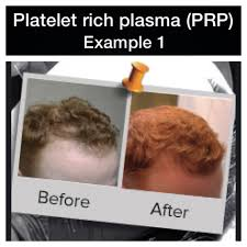 Propecia Shedding After 1 Year by Information On Finasteride For Men U2014 Donovan Hair Clinic
