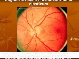 8 Angioid Streaks Pseudoxanthoma Elasticum
