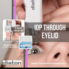 UNIQUE EYE TONOMETER DIATON FEATURED AT ASCRS ASOA MEETING IN