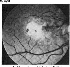4 Angioid Streaks Associated With A Disciform Macular Scar Probably Secondary To Previous