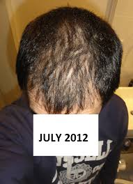Propecia Shedding After 1 Year by My Finasteride Story So Far Archive Bald Truth Talk Hair