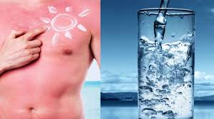 how to relieve sunburn itch from tanning bed relieve sunburn
