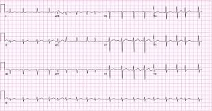 Atrial fibrillation ECG classification causes risk factors