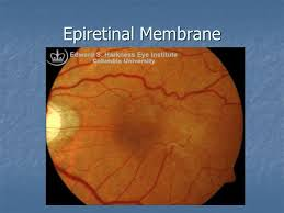 Overview Of Retinal Conditions Clinical And OCT Findings Central