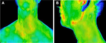 Infrared Lamp Therapy Ppt by Infrared Thermography In The Diagnosis And Management Of