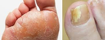Infected Fingernail Bed by Infections Of The Nails And Skin