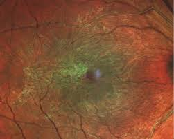 Figure 2 Epiretinal Membrane Peeling Is One Management Option