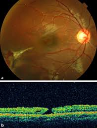 Vitrectomy And Internal Limiting Membrane Peeling Of A Traumatic Macular Hole With Retinal Folds
