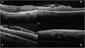 Differentiating Epimacular Membrane Using SD OCT Morphology A Patient With Typical Idiopathic Single Hyper Reflective Line