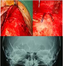 Orbital Floor Fracture Radiology by Current Management Of Frontal Sinus Injuries Intechopen