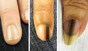 a day in the life of a nail expert melanoma health nails magazine