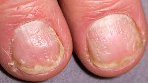 Toenail Separated From Nail Bed by Nail Pitting Causes Treatment And More