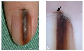acral melanoma clinical biologic and molecular genetic