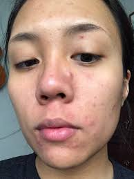Pumpkin Enzyme Peel Before And After by Banish Acne Scars Product Review My Professional Life With Acne