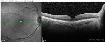 Spectralis OCT Of The Macula OD At One Month Post Operative Visit Demonstrating