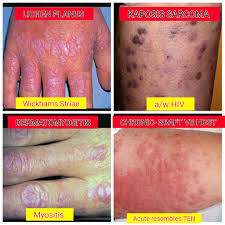 Pityriasis Rosea Christmas Tree Distribution by Medical Concepts August 2016