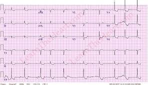 DIgoxin Effect ECG Example 1