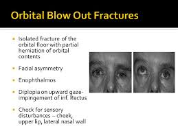 Fracture Orbital Floor Treatment by Maxillofacial Trauma Ppt Video Online Download
