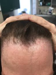 Propecia Shedding After 1 Year by Finasteride The Griffin Center Of Hair Restoration U0026 Research