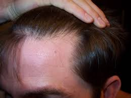 mbehr22 s story propecia after 6 months hairlosstalk forums
