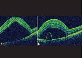 Figure 1 Presentation A Optical Coherence Tomography Shows Significant Macula Subretinal Fluid B Pigment Epithelial Detachment With Neurosensory