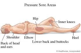 5 tips for preventing bed sores