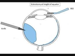 Surgical Management Of Choroidal Detachment For Dummies