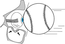 Fracture Orbital Floor Icd 10 by And Mandibular Fractures