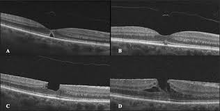 Optical Coherence Tomography OCT Imaging Of An Epiretinal Membrane ERM Secondary To