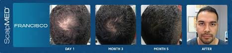 Minoxidil Shedding Phase Duration by Average Hair Growth In A Month Scalp Med