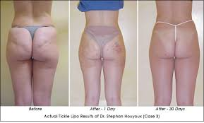 Beauty Tech Review Body Contouring Tickle Lipo AHB