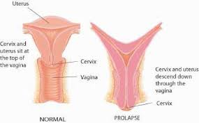 Uterus Lining Shedding Period by The Uterus Structure Function And Common Problems Family Doctor